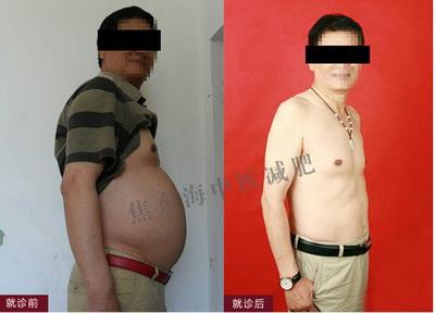 沈阳焦东海肥胖病医院中医减肥达人