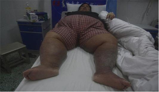 沈阳焦东海肥胖病医院用中医减肥方式治疗肥胖的图片