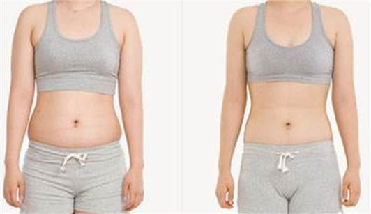 沈阳焦东海减肥医院为你展示埋线减肥前后肚子对比图片