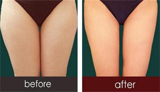 沈阳焦东海减肥医院为你展示埋线减肥前后对比的图片
